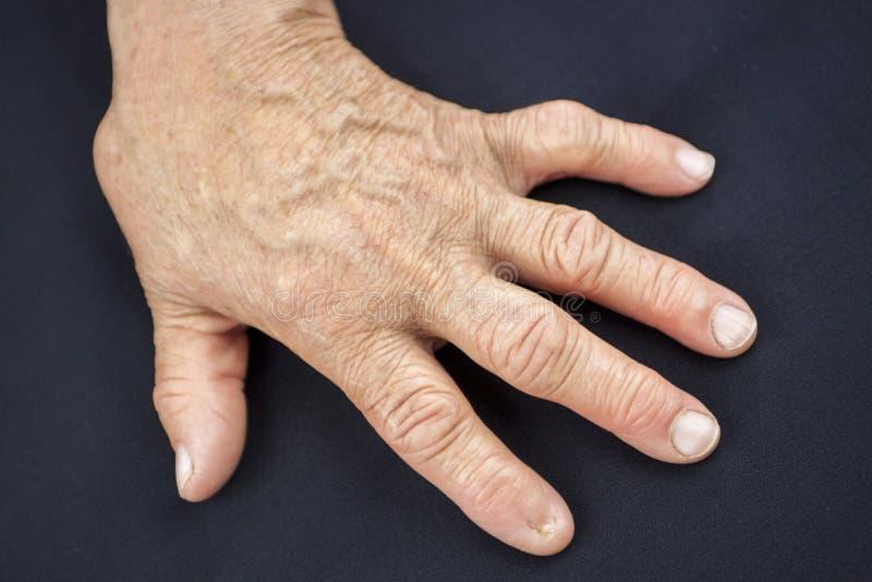Δάχτυλο χωρίς καρφί στοκ εικόνες