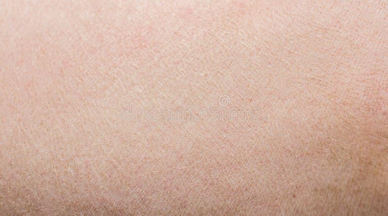 Δέρμα χοίρων στοκ εικόνες