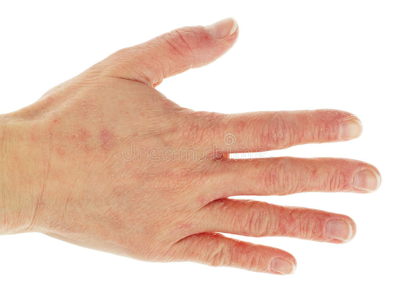Δερματίτιδα εκζεμάτων στο πίσω μέρος του χεριού στοκ φωτογραφίες
