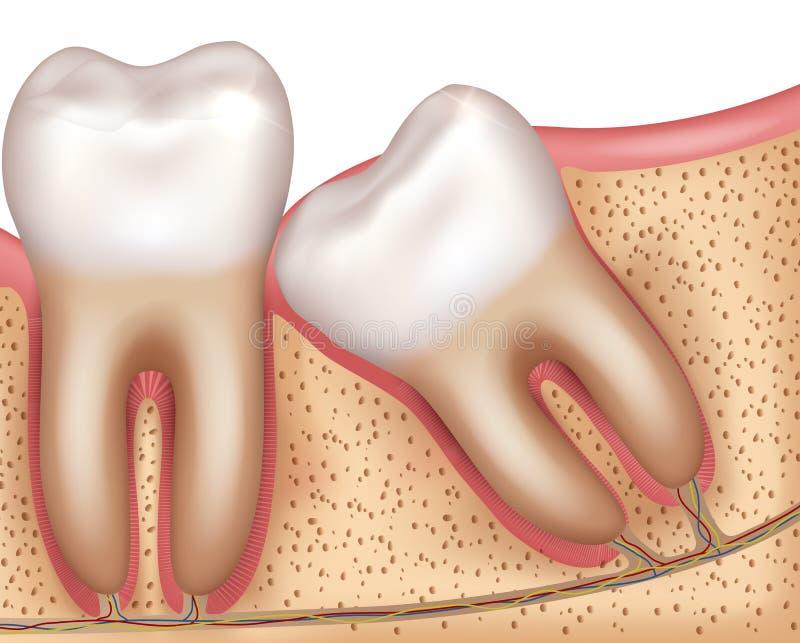 Διάγραμμα έκρηξης δοντιών φρόνησης απεικόνιση αποθεμάτων