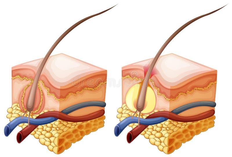 Διάγραμμα που παρουσιάζει τρίχα και κάτω από το ανθρώπινο δέρμα διανυσματική απεικόνιση