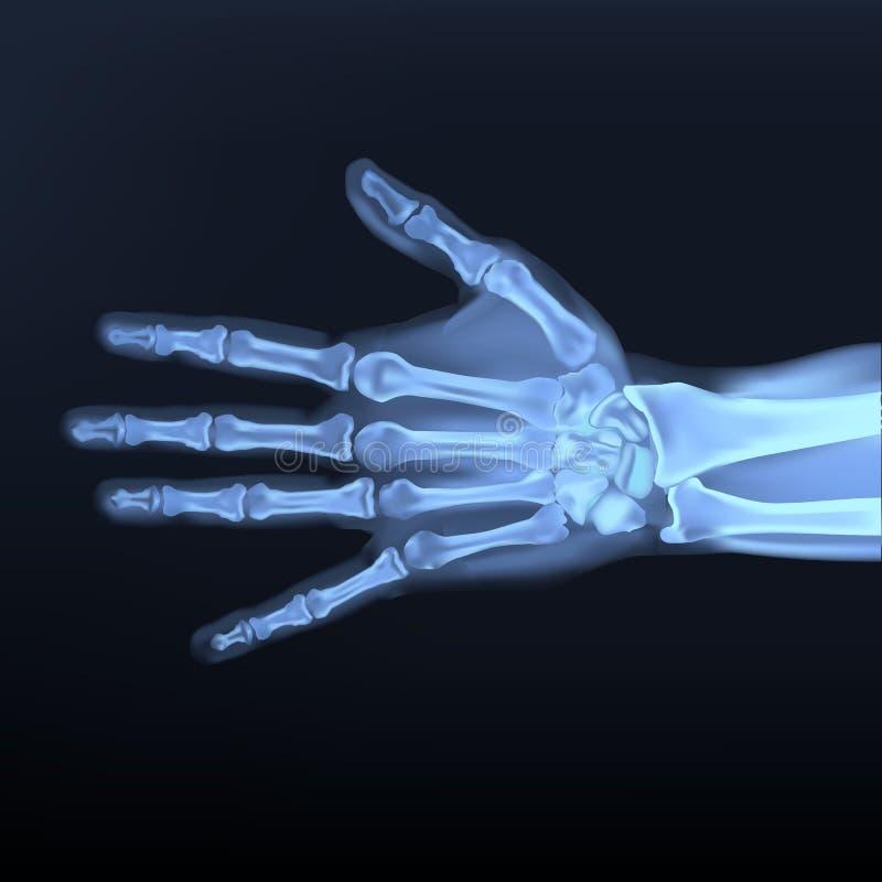 Διάνυσμα της ακτίνας X χεριών Α στοκ εικόνα