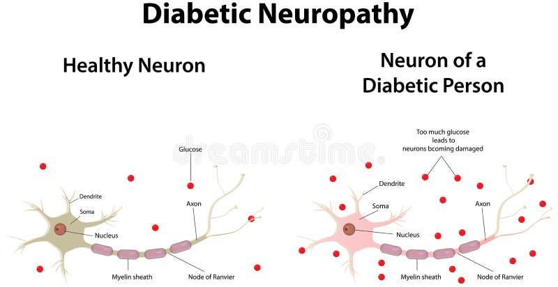 Διαβητική νευροπάθεια διανυσματική απεικόνιση