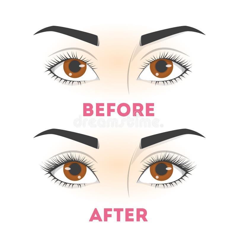 Διαδικασία επέκτασης Eyelash πριν και μετά _ ελεύθερη απεικόνιση δικαιώματος