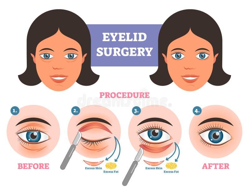 Διαδικασία χειρουργικών επεμβάσεων βλέφαρων πριν μετά από το illuatration με τα κύρια βήματα Υπερβολικό δέρμα και παχιά αφαίρεση ελεύθερη απεικόνιση δικαιώματος