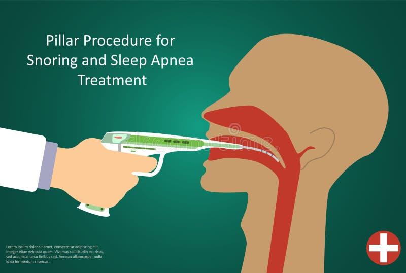 Διανυσματική απεικόνιση των διαδικασιών για τη λειτουργία στυλοβατών ασφυξίας ύπνου διανυσματική απεικόνιση