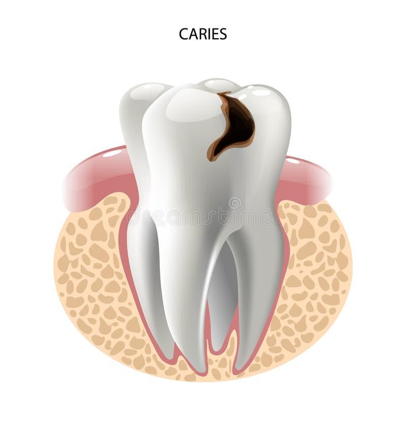 Διανυσματική ασθένεια τερηδόνων δοντιών εικόνας ελεύθερη απεικόνιση δικαιώματος