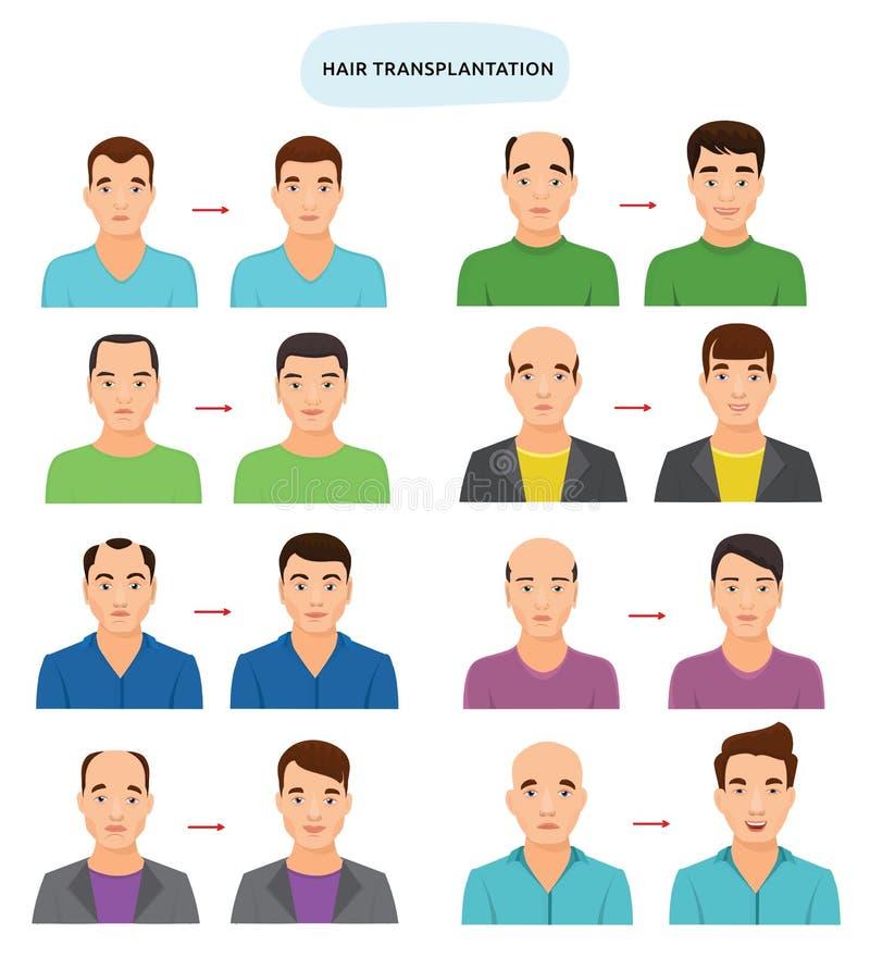 Διανυσματική τριχωτή μεταμόσχευση μεταμόσχευσης τρίχας μετά από τα hairloss και φαλάκρα για το φαλακρό σύνολο απεικόνισης ατόμων  διανυσματική απεικόνιση