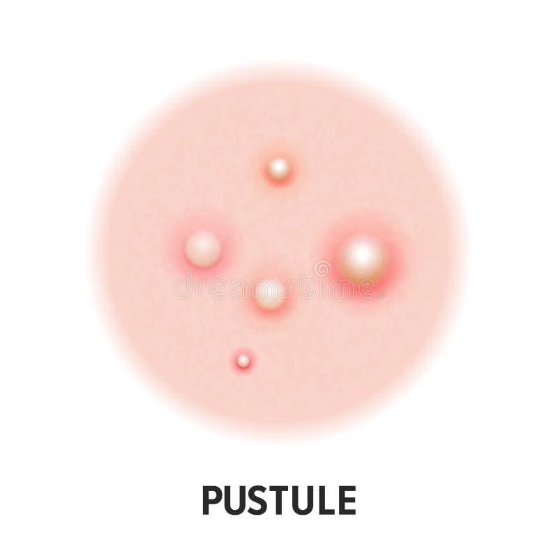 Διανυσματικό εικονίδιο τύπων ακμής δερμάτων Pustule Τύπος σπυρακιών ακμής ασθενειών δερμάτων pustules, πόρος προσώπου comedones διανυσματική απεικόνιση