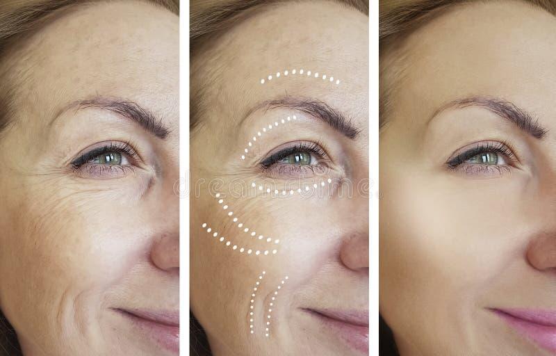 Διαφορά αναγέννησης σκλήρυνσης ανύψωσης αφαίρεσης ρυτίδων γυναικών μετά από cosmetology κολάζ την αντίθεση αναγέννησης στοκ φωτογραφία με δικαίωμα ελεύθερης χρήσης