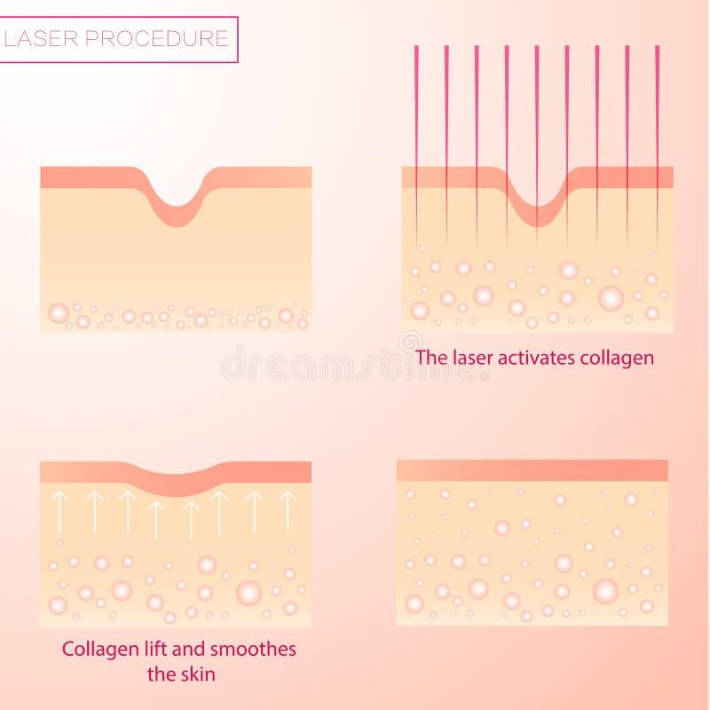 Διαδικασία της αναζωογόνησης λέιζερ Ανύψωση και να ξαναέρθει στην επιφάνεια του δέρματος Ευθυγράμμιση των ρυτίδων ελεύθερη απεικόνιση δικαιώματος