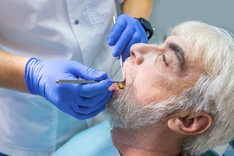 Διαδικασία της οδοντικής εξέτασης στοκ εικόνα