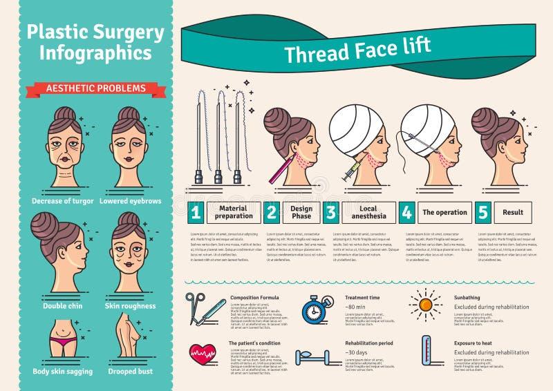 Διευκρινισμένο διάνυσμα σύνολο με την ανυψωτική χειρουργική επέμβαση προσώπου από τα νήματα διανυσματική απεικόνιση