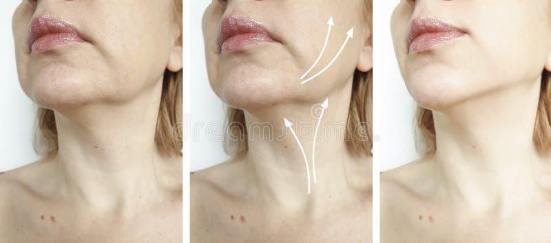 Διπλό πηγούνι γυναικών πριν και μετά από την επεξεργασία στοκ εικόνα με δικαίωμα ελεύθερης χρήσης