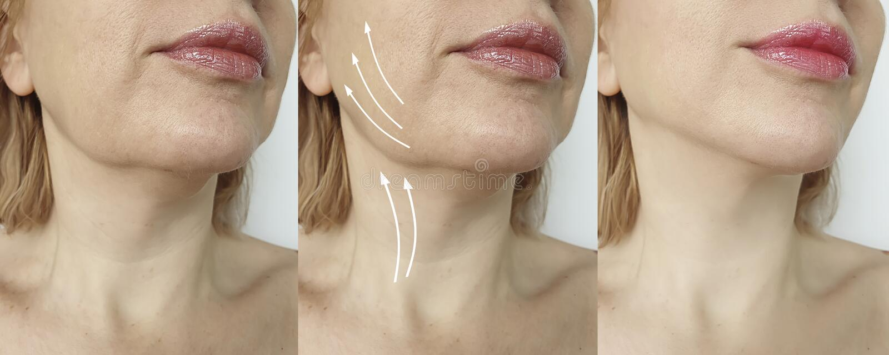 Διπλό πηγούνι γυναικών πριν και μετά από τη διόρθωση επεξεργασίας στοκ εικόνα