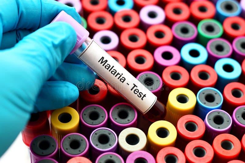 Δοκιμή ελονοσίας στοκ εικόνες
