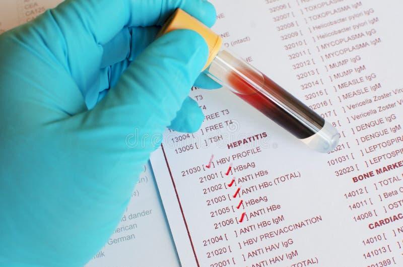 Δοκιμή ιών ηπατίτιδας Β στοκ εικόνα με δικαίωμα ελεύθερης χρήσης