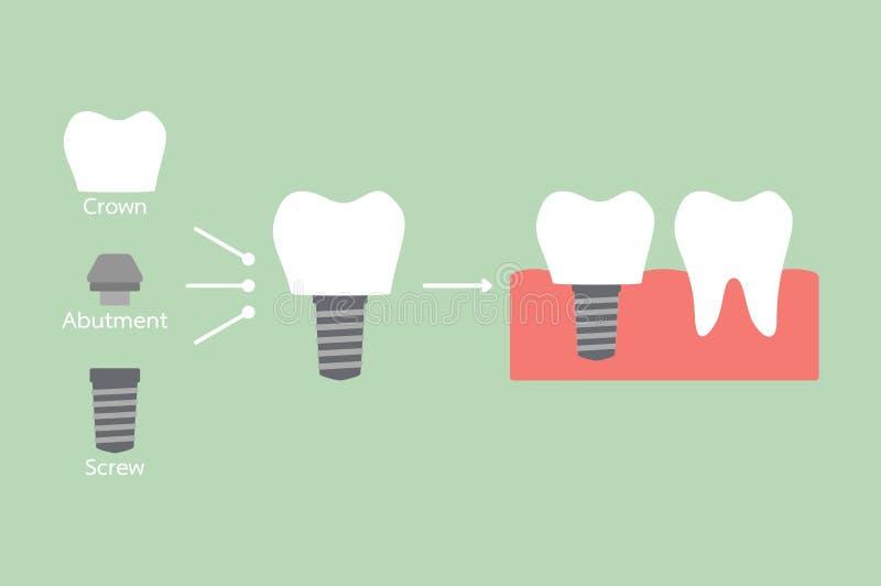 Δομή του οδοντικού μοσχεύματος με όλα τα μέρη που αποσυντίθενται, κορώνα, συναρμογή, βίδα - συγκρίνετε με το ισχυρό δόντι διανυσματική απεικόνιση