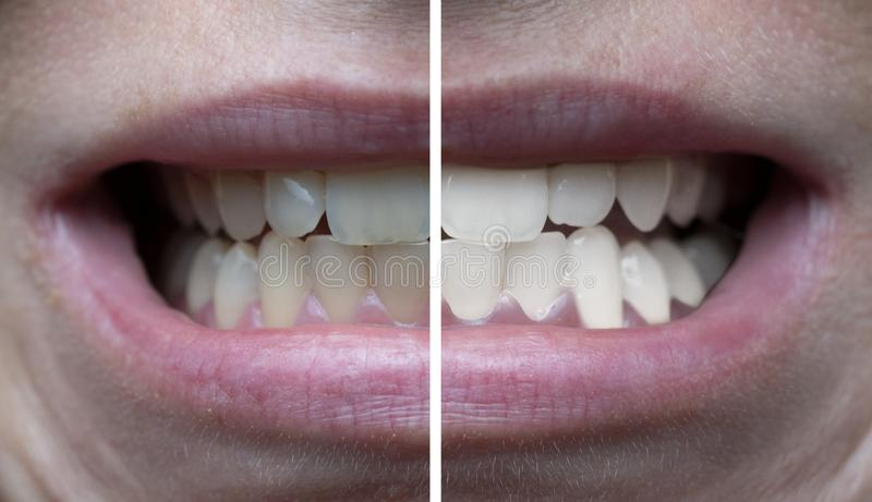 Δόντια που λευκαίνουν πριν κατόπιν στοκ εικόνες
