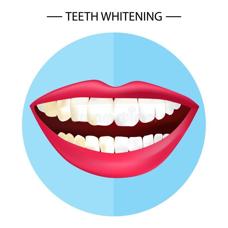 Δόντια που λευκαίνουν την απεικόνιση ελεύθερη απεικόνιση δικαιώματος