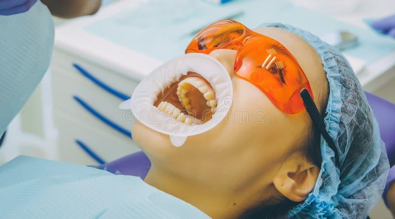 Δόντια που λευκαίνουν τη διαδικασία στοκ εικόνα
