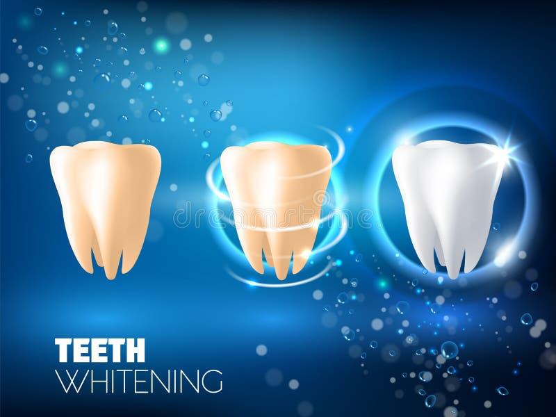Δόντια που λευκαίνουν τη διανυσματική ρεαλιστική απεικόνιση αγγελιών ελεύθερη απεικόνιση δικαιώματος