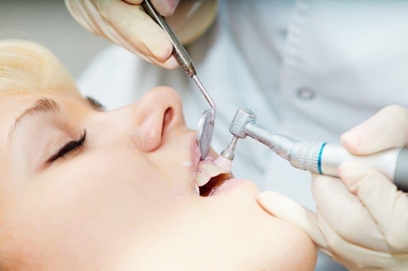 Δόντια υγειονομικής περίθαλψης οδοντιάτρων που γυαλίζουν την εργασία στοκ φωτογραφίες με δικαίωμα ελεύθερης χρήσης