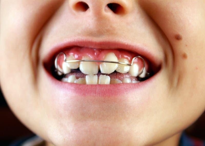 δόντια χαμόγελου στηριγμάτων στοκ εικόνα