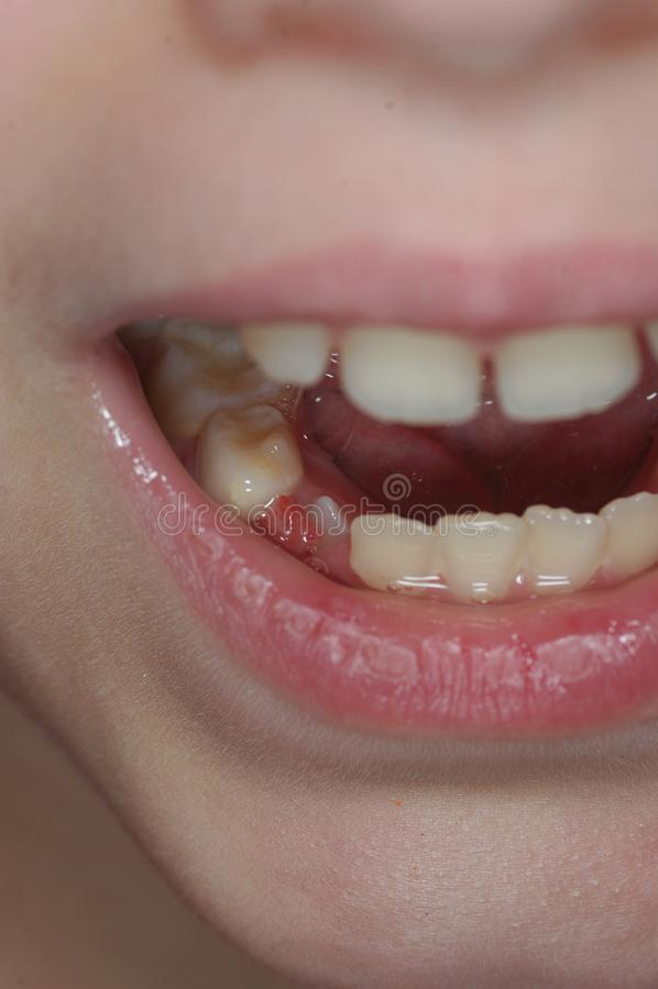 Δόντι γάλακτος ενός παιδιού στοκ φωτογραφίες