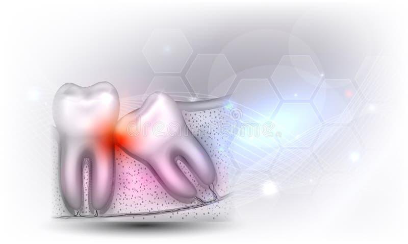 Δόντι φρόνησης διανυσματική απεικόνιση