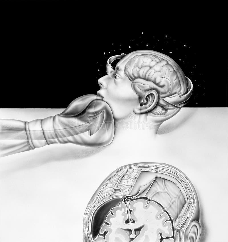 Εγκέφαλος - τα αποτελέσματα του εγκιβωτισμού απεικόνιση αποθεμάτων