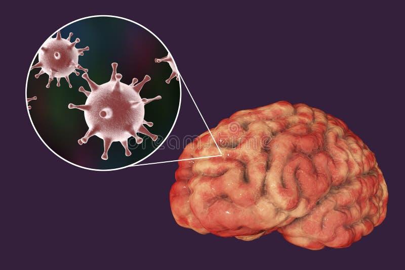 Εγκεφαλίτιδα ιών έρπη, ιατρική έννοια ελεύθερη απεικόνιση δικαιώματος