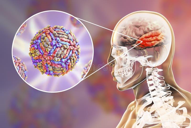 Εγκεφαλίτιδα ιών του δυτικού Νείλου διανυσματική απεικόνιση
