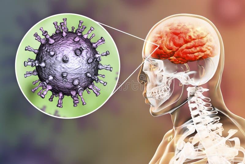 Εγκεφαλίτιδα ιών Varicella zoster απεικόνιση αποθεμάτων