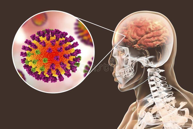 Εγκεφαλίτιδα περιπλοκής γρίπης ελεύθερη απεικόνιση δικαιώματος
