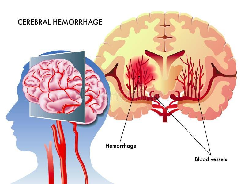 εγκεφαλική αιμορραγία διανυσματική απεικόνιση