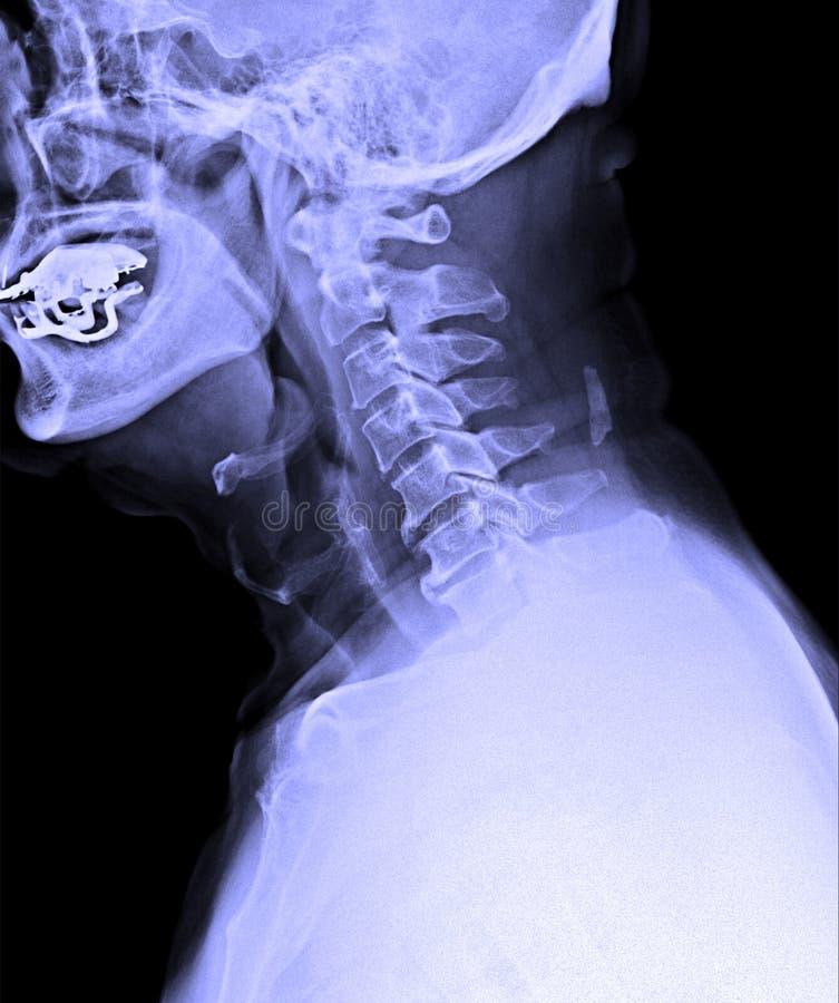 Εικόνα ακτίνας X της αρσενικής ανθρώπινης αυχενικής σπονδυλικής στήλης στοκ εικόνα με δικαίωμα ελεύθερης χρήσης