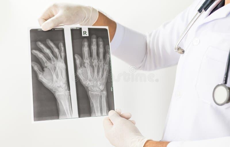 Εικόνα ακτίνας X των ανθρώπινων χεριών, γιατρός που εξετάζει μια ακτινογραφία πνευμόνων, γιατρός που φαίνεται θωρακική των ακτίνω στοκ φωτογραφία με δικαίωμα ελεύθερης χρήσης