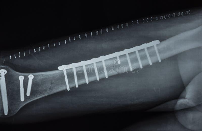Εικόνα ακτίνας X στοκ φωτογραφίες
