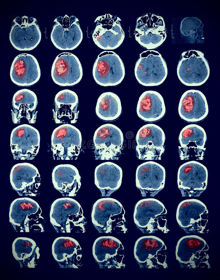 Εικόνα του ανθρώπινου εγκεφάλου με την παθολογία διανυσματική απεικόνιση