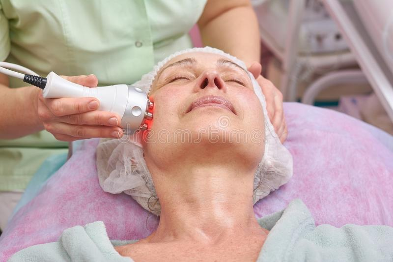 Ενήλικη γυναίκα, σκλήρυνση δερμάτων RF στοκ εικόνα με δικαίωμα ελεύθερης χρήσης