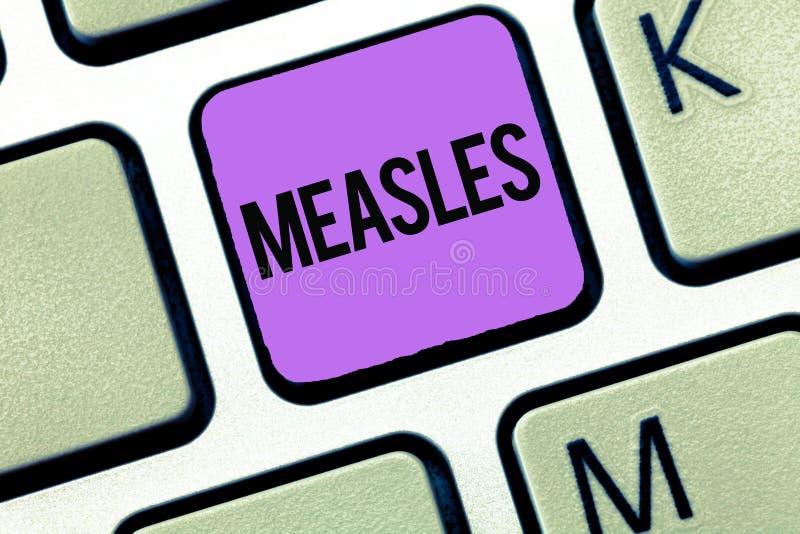 Εννοιολογικό χέρι που γράφει παρουσιάζοντας ιλαρά Επιχειρησιακή φωτογραφία που επιδεικνύει τη μολυσματική προερχόμενη από ιό ασθέ στοκ εικόνες με δικαίωμα ελεύθερης χρήσης