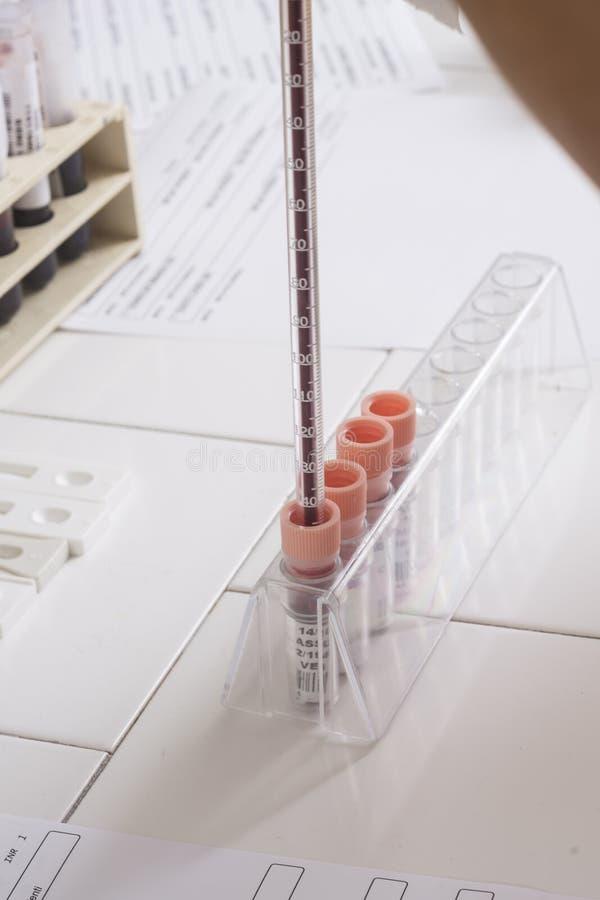 Εξέταση αίματος στοκ εικόνες με δικαίωμα ελεύθερης χρήσης