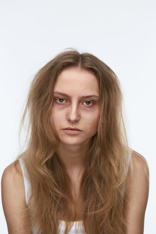 Εξαντλημένη νέα γυναίκα με τους μώλωπες κάτω από τα μάτια στοκ φωτογραφίες