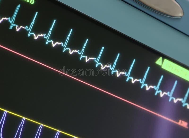 Επίδειξη με την ECG-καμπύλη στοκ φωτογραφία με δικαίωμα ελεύθερης χρήσης