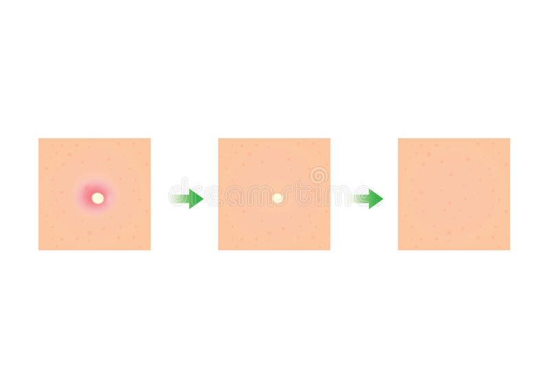 Επεξεργασία δερμάτων ακμής απεικόνιση αποθεμάτων