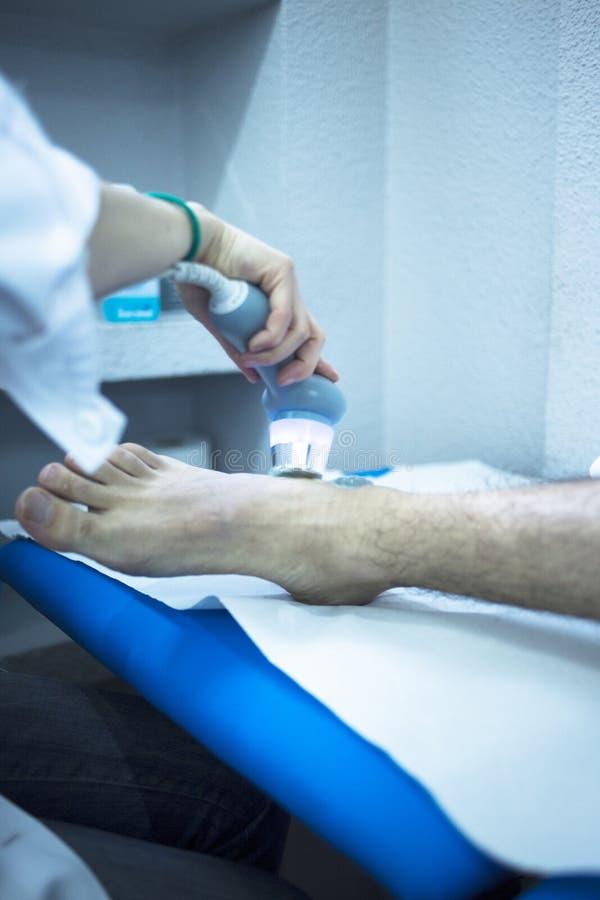 Επεξεργασία φυσιοθεραπείας πόνου πίεσης τραυματισμών Musclefoot στοκ φωτογραφία με δικαίωμα ελεύθερης χρήσης