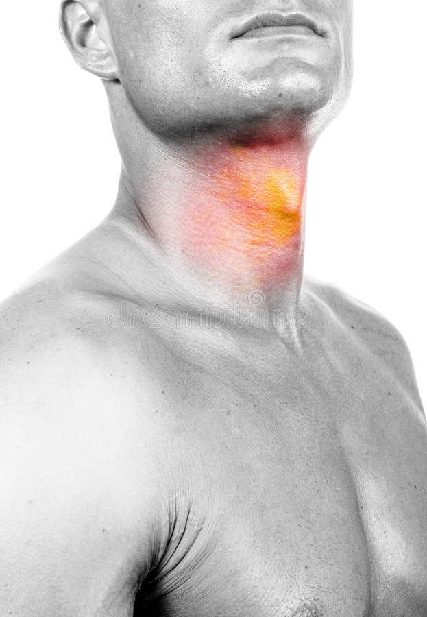 επώδυνος λαιμός στοκ φωτογραφίες