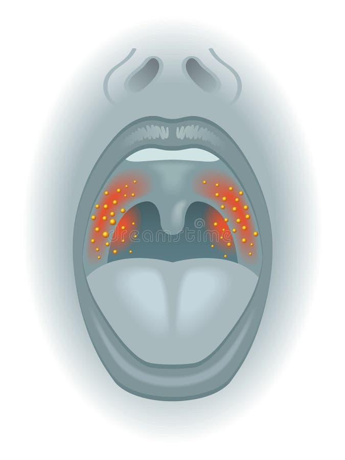 Επώδυνος λαιμός διανυσματική απεικόνιση