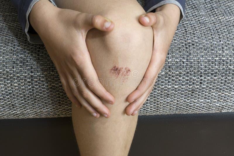 επώδυνη γυναίκα γονάτων τραυματισμών εκμετάλλευσης στοκ φωτογραφίες